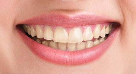 Before-Teeth Whitening